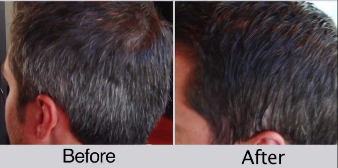 Dr Greyhalt Lose Your Greya Hair Color Gray To Black Hair White Hair